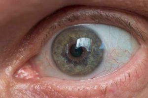 Glaucoma group